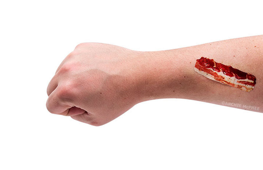 bacon_bandages_arm